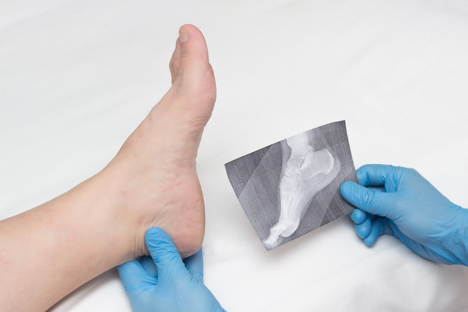 Doctor comparing patient's foot with an x-ray of bone spurs