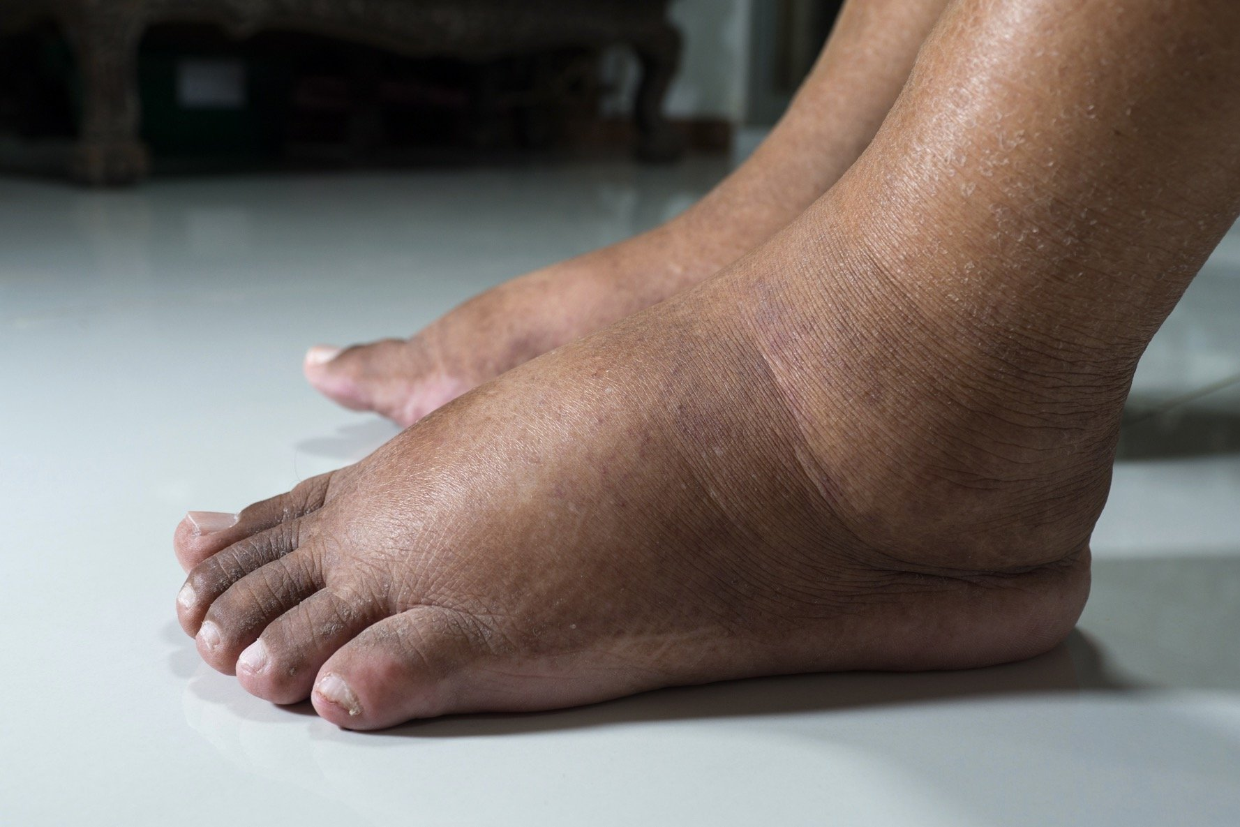 Person with swollen feet suffering from diabetes mellitus