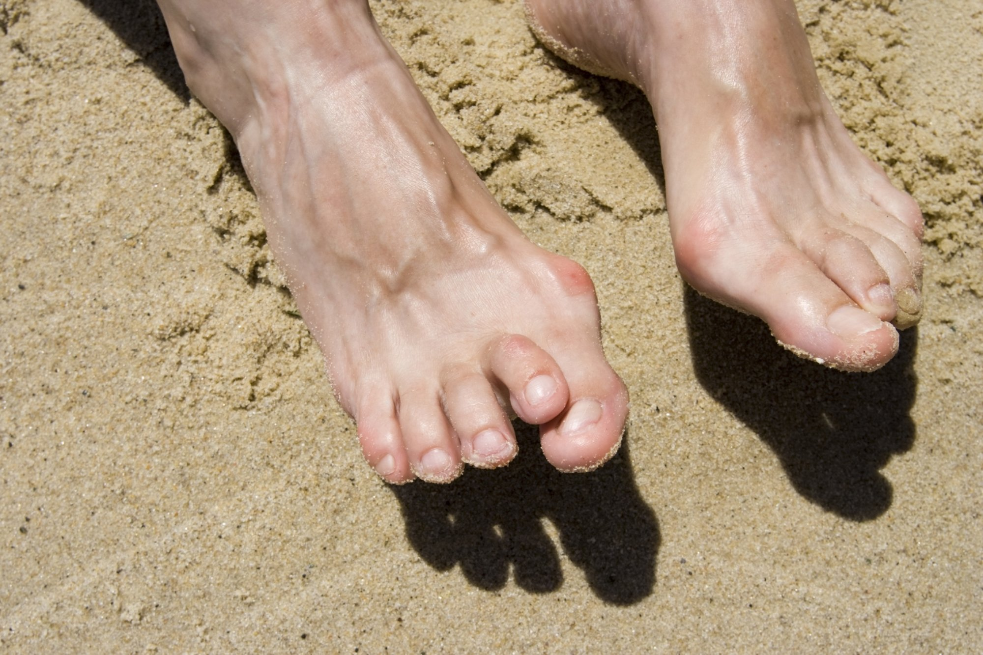 Man Moving Hammertoe Through Sand