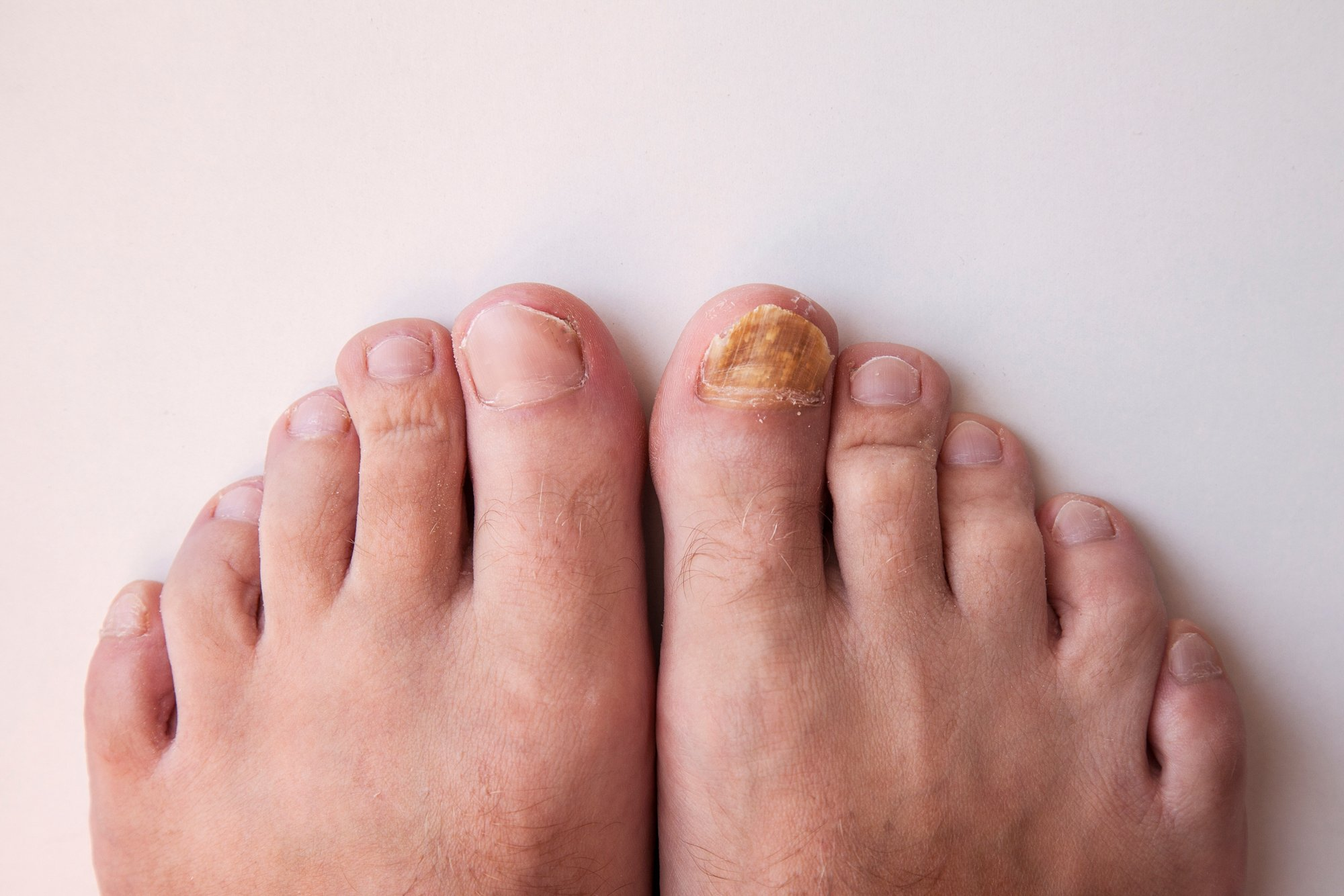 Feet with toenail fungus on the big right toe