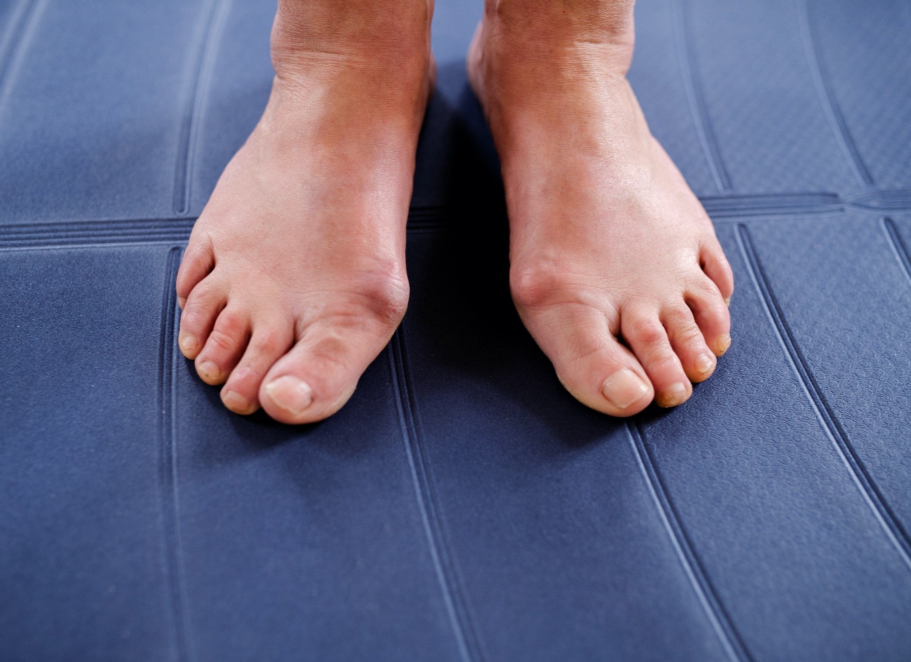 Person Suffering From Painful Bunions Wondering How to Treat Bunions at Home